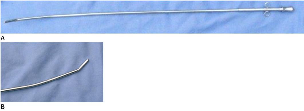 The Nielson catheter